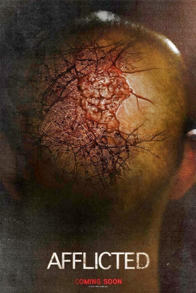 Afflicted – bolnav (2013)